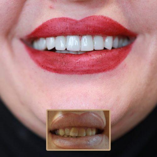 دندانپزشکی طرح لبخند