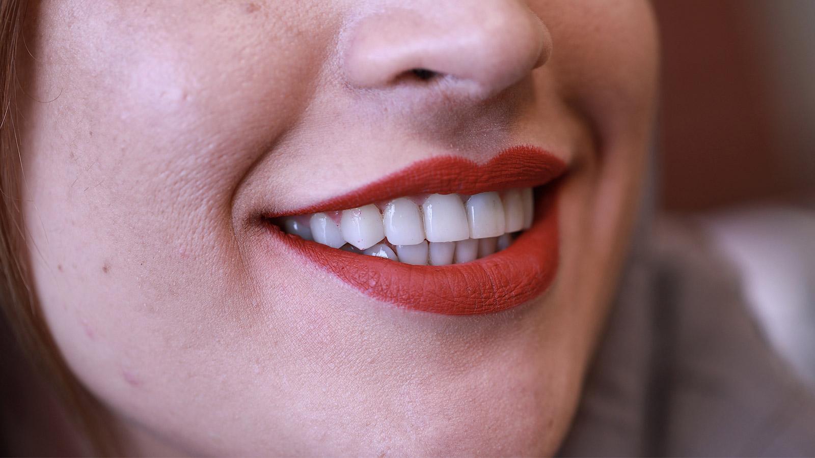 بهترین مرکز کامپوزیت دندان