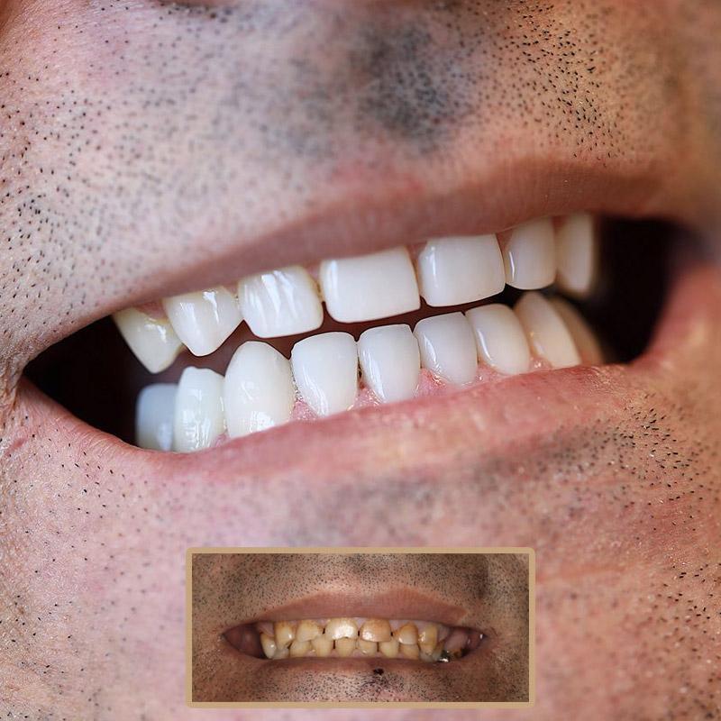 کامپوزیت دندان های بالا و پایین بیمار