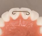 ریتینر پشت دندانی ثابت