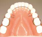 سیم کمانی پشت دندانی