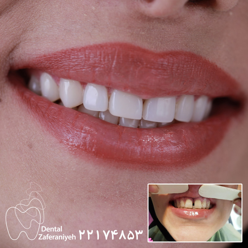 بستن فاصله دندان با کامپوزیت ونیر