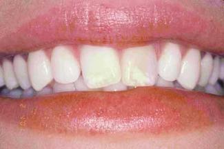 طراحی لبخند قبل از درمان