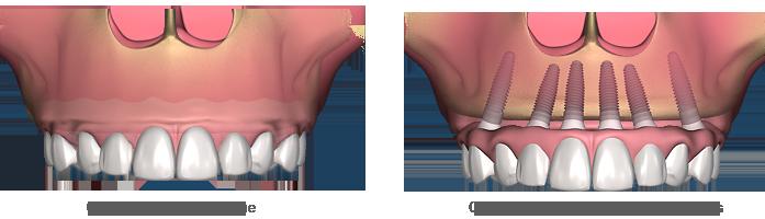 مقایسه اوردنچر با دندان مصنوعی