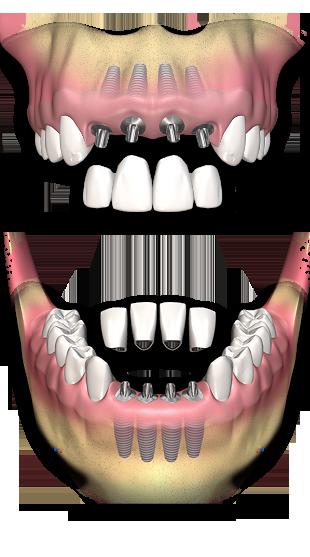 کاشت ایمپلنت به جای چند دندان