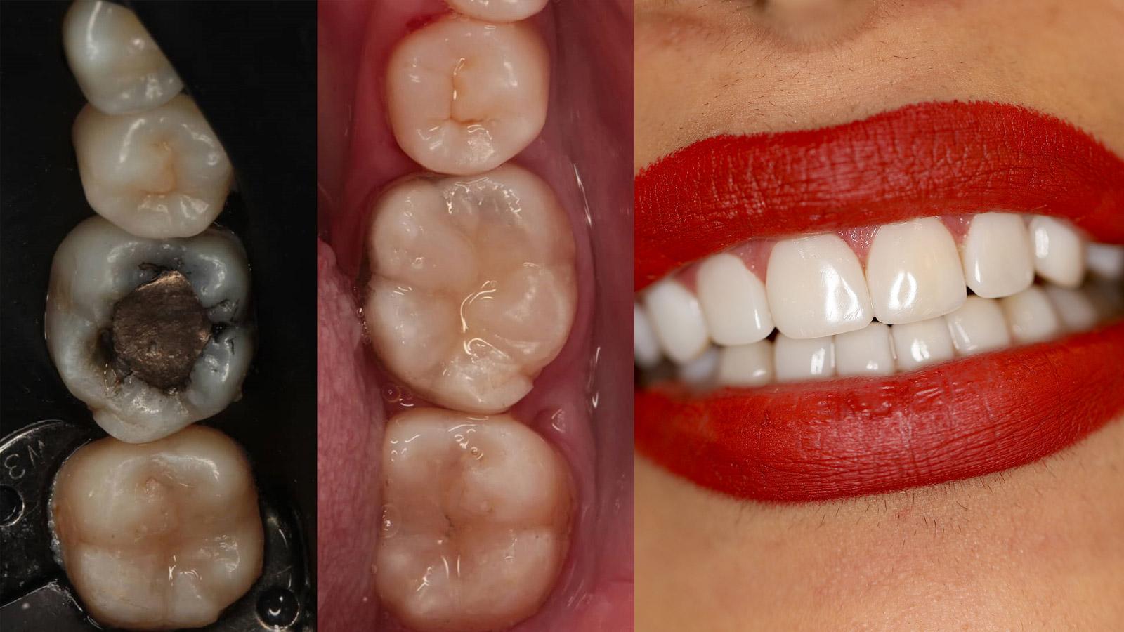 ترمیم دندان با کامپوزیت دندان