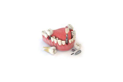 افتادن ایمپلنت از دهان