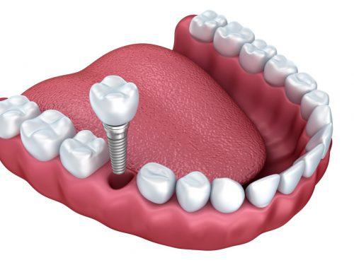 ایمپلنت دندان مادام العمر