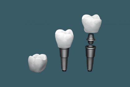 کاشت یک روزه ایمپلنت دندان