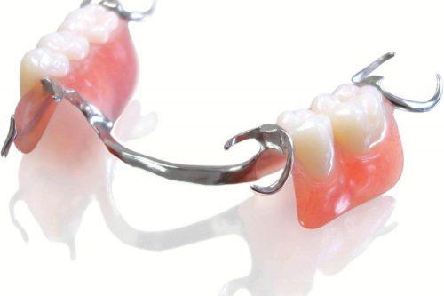 دندان مصنوعی نیمه یا پارسیل
