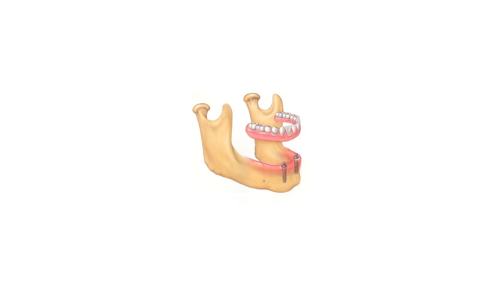 ثابت کردن دندان مصنوعی با ایمپلنت