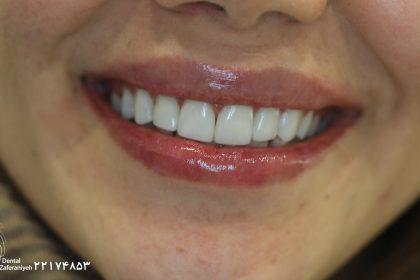 لمینت دندان کریستالی