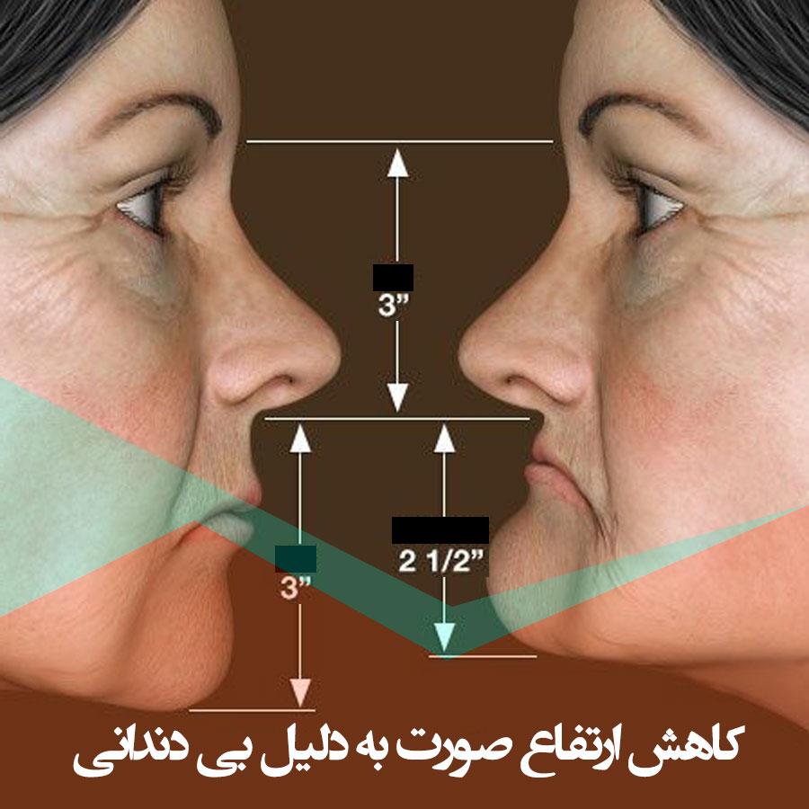 کاهش ارتفاع صورت