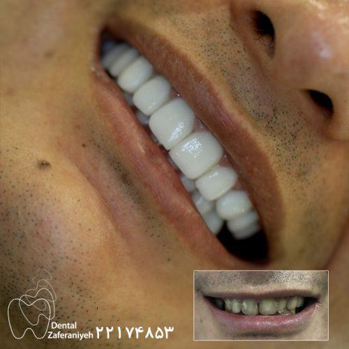 بعد از لمینت دندان سان ست