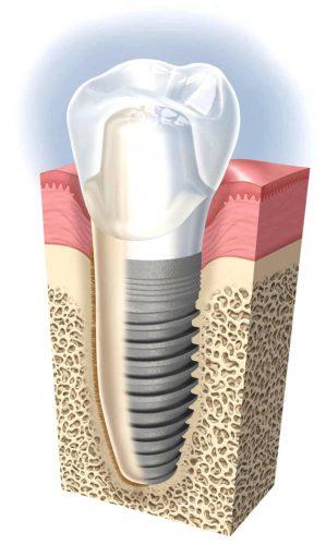 ایمپلنت دندان کاشته شده در فک