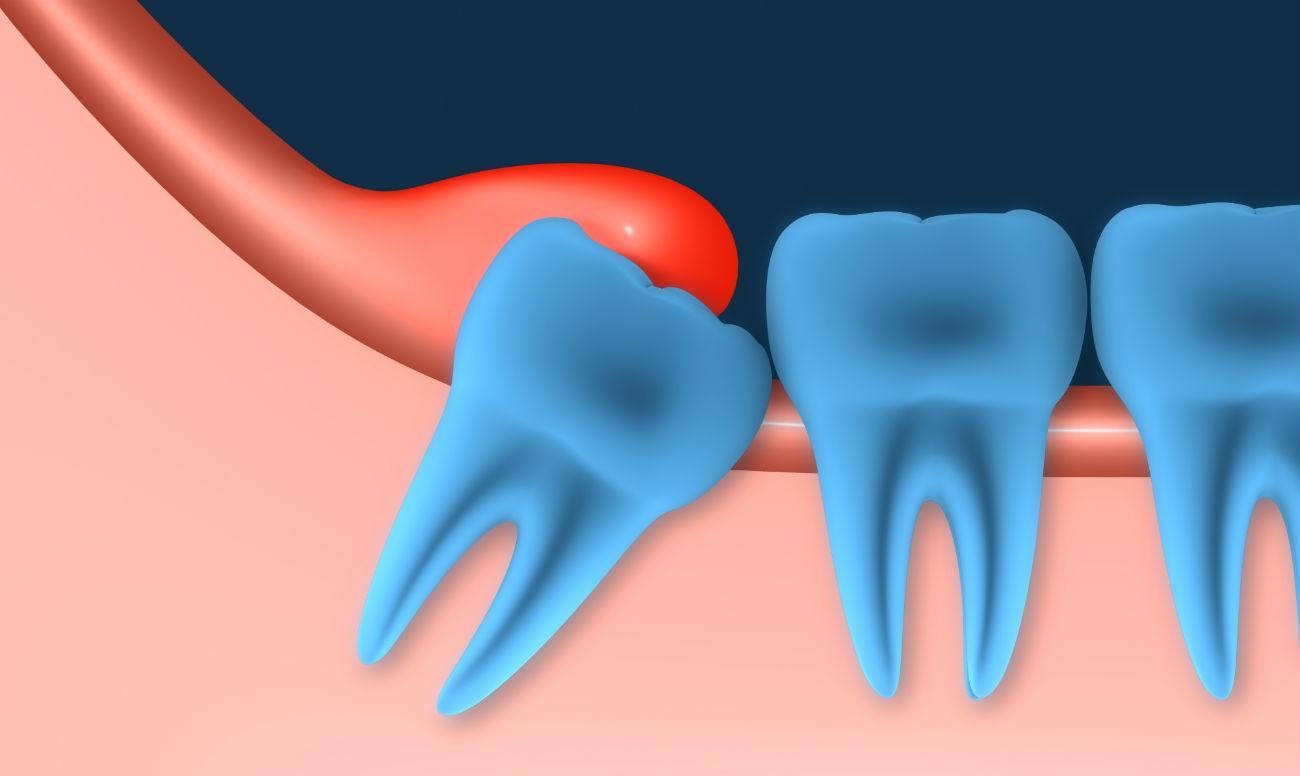 آبسه دندان عقل