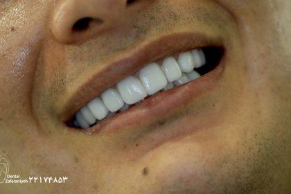 لمینت دندان سان ست