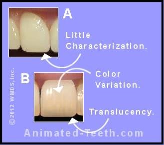حجیم شدن دندان در موارد لمینت کردن بدون تراشیدن دندان