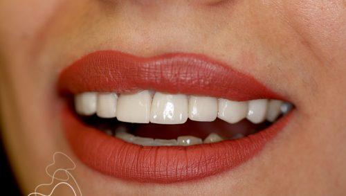 لمینت دندان خیلی نازک