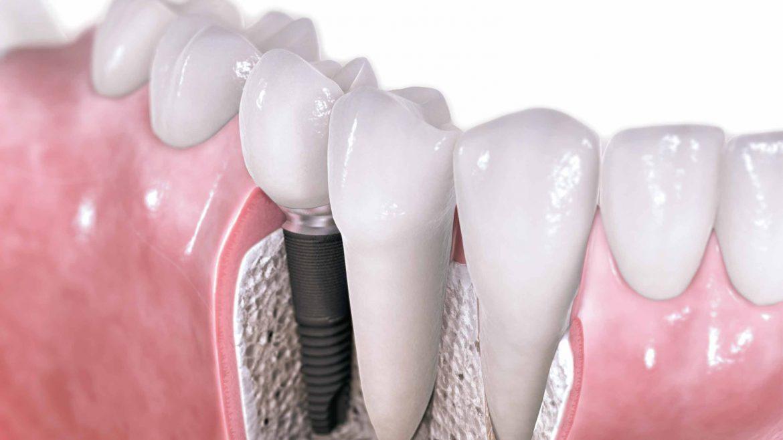 مراحل کاشت ایمپلنت دندانی