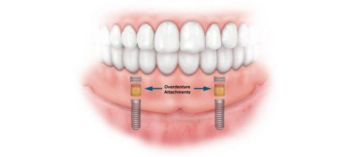حداقل گیر ٢ عدد ایمپلنت در نواحی دندان هاى نیش