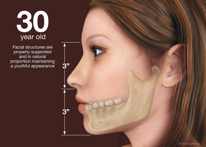 ظاهر صورت در 30 سالگی قبل از از دست دادن دندان
