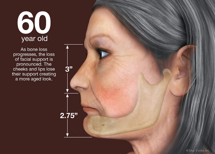 از دست دادن دندان در 60 سالگی