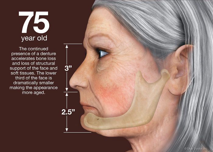 از دست دادن دندان در 70 سالگی