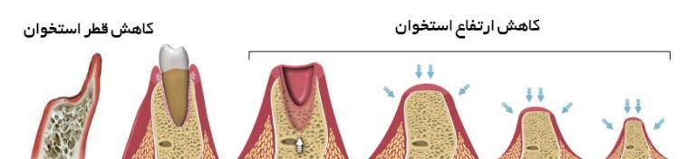 تحلیل قطر استخوان و تحلیل ارتفاع استخوان