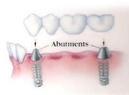 پروتز برای چهار دندان