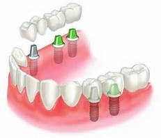 پروتز دو دندان ایمپلنت