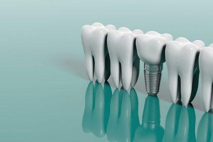 خارج کردن دندان تا کاشت ایمپلنت